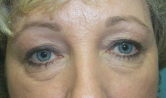Upper and Lower Lid Blepharoplasty and Cheeklift