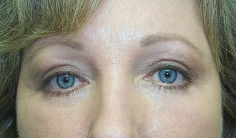 Upper and Lower Lid Blepharoplasty and Cheeklift after 148577