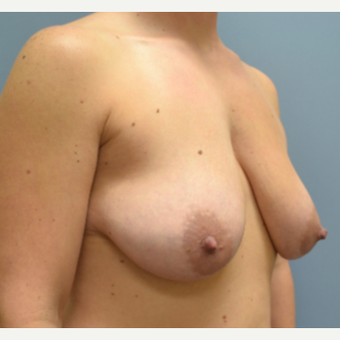 35-44 year old woman treated with Breast Lift with Implants before 3610715