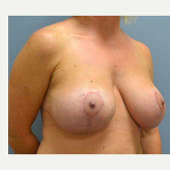 35-44 year old woman treated with Breast Lift with Implants after 3610715