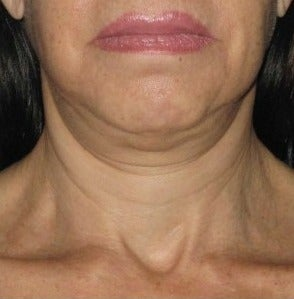 45-54 year old woman treated with Ultherapy before 2180845