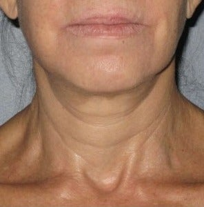 45-54 year old woman treated with Ultherapy after 2180845