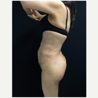 55-64 year old woman treated with Brazilian Butt Lift after 3046528