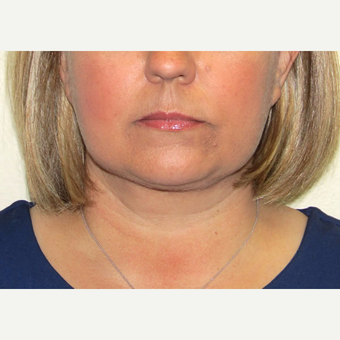 45-54 year old woman treated with Liposuction after 3802681