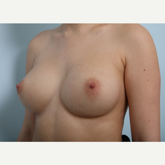 Breast Augmentation after 3340122