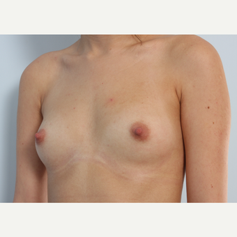 Breast Augmentation before 3340122