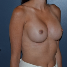 35-44 year old woman treated with Breast Augmentation after 3298595