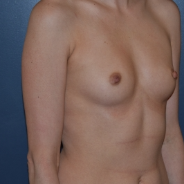 35-44 year old woman treated with Breast Augmentation before 3298595