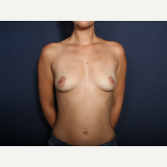 25-34 year old woman treated with Breast Augmentation (view 1 of 2) before 3424520