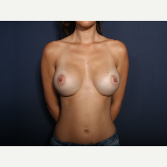 25-34 year old woman treated with Breast Augmentation (view 1 of 2) after 3424520