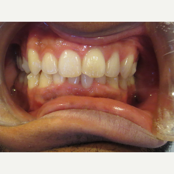 25-34 year old man treated with Invisalign after 3339082