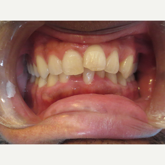 25-34 year old man treated with Invisalign before 3339082