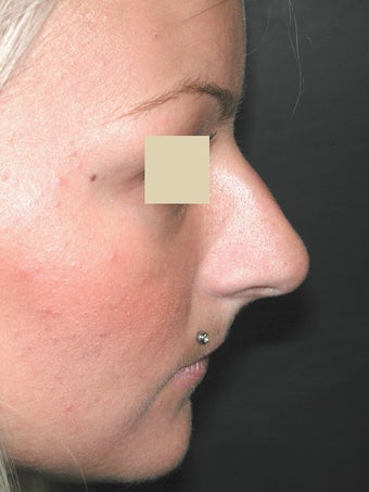 Rhinoplasty before 95659