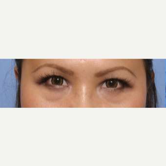 35-44 year old woman treated with Eye Bags Treatment before 3135633