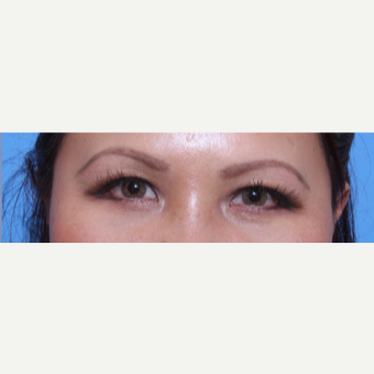 35-44 year old woman treated with Eye Bags Treatment after 3135633