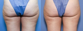 33 year old female treated for cellulite before 933766