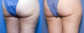 33 year old female treated for cellulite 933766