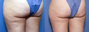 33 year old female treated for cellulite after 933766