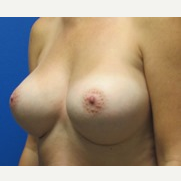 5'6 150lbs 550cc ultra high profile breast implants after 3370879