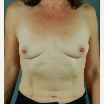35-44 year old woman treated with Breast Augmentation before 3310763