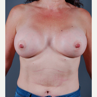 35-44 year old woman treated with Breast Augmentation after 3310763