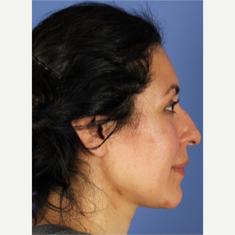 45-54 year old woman treated with Rhinoplasty before 3788702