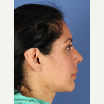 45-54 year old woman treated with Rhinoplasty after 3788702