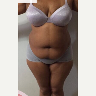 35-44 year old woman treated with Tummy Tuck before 3825547