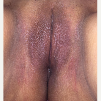 35-44 year old woman treated with Labiaplasty after 3814119