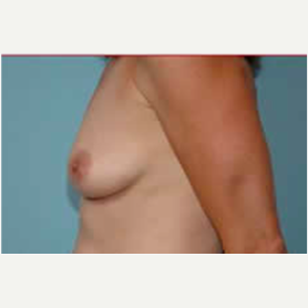 Breast Augmentation before 3058280