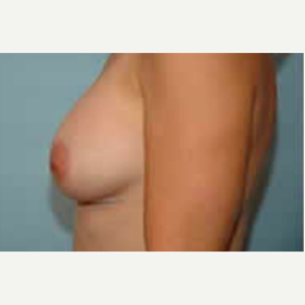 Breast Augmentation after 3058280