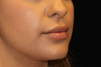 25-34 year old woman treated with Lip Augmentation 3502565
