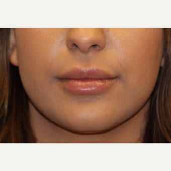 25-34 year old woman treated with Lip Augmentation after 3502565