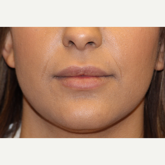 25-34 year old woman treated with Lip Augmentation before 3502565