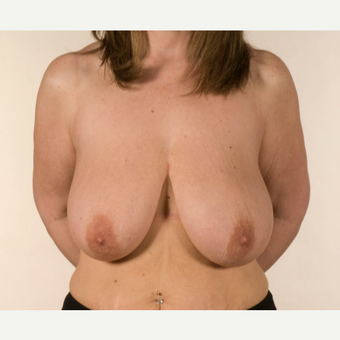 35-44 year old woman treated with Breast Reduction before 3058683