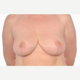 35-44 year old woman treated with Breast Reduction after 3058683
