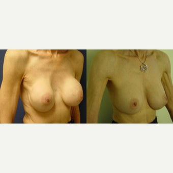 55-64 year old woman treated with Breast Implants before 2130138