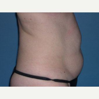 CoolSculpting before 2898865