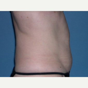 CoolSculpting after 2898865