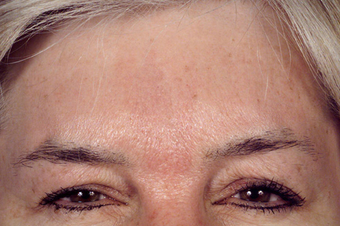 Forehead Lift after 1427350