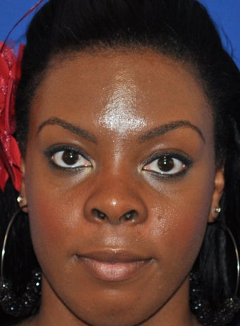 African American Rhinoplasty before 890405