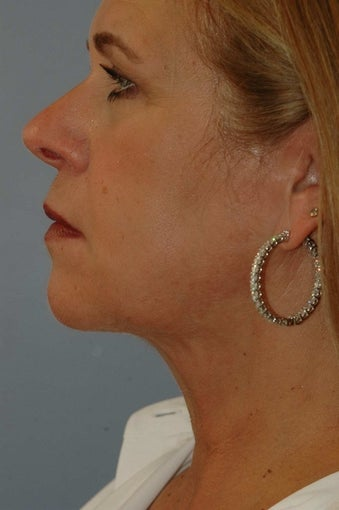 Laser Lift neck and jawline 1497256