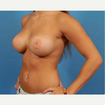 25-34 year old woman treated with Breast Augmentation after 3786952