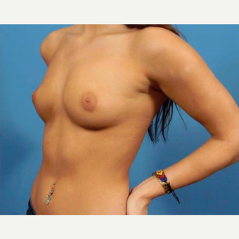 25-34 year old woman treated with Breast Augmentation before 3786952