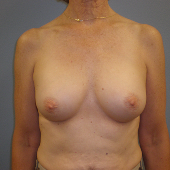 55-64 year old woman treated with Breast Augmentation after 3685455