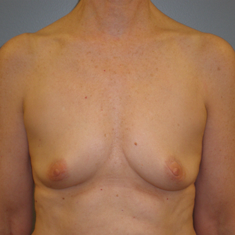 55-64 year old woman treated with Breast Augmentation before 3685455