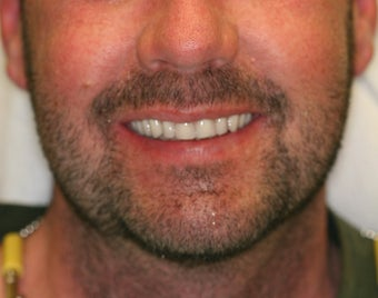 32 year old male treated with All-on-4 Dental Implant Procedure after 1053457