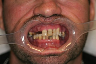 32 year old male treated with All-on-4 Dental Implant Procedure before 1053457