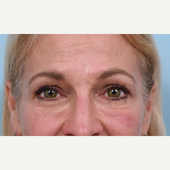 55 year old woman treated with Liquid Facelift after 3610780