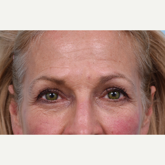 55 year old woman treated with Liquid Facelift before 3610780